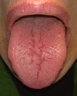 tongue_crack
